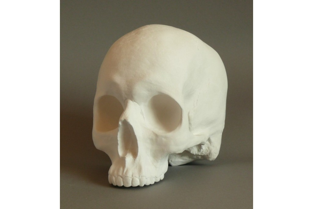 Гипсовая модель Череп без нижней челюсти 18х16х14 см